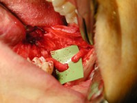 Injured Lingual Nerve