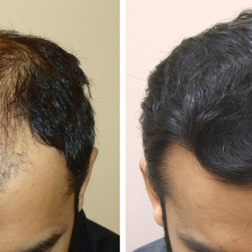 Introducing Aesthetics Hair Restoration