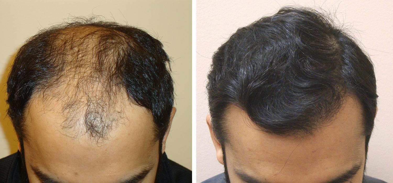 Aesthetics Hair Restoration in Atlanta, GA